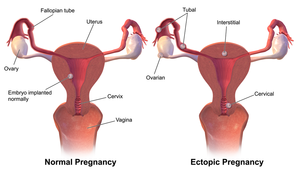 signs of ectopic pregnancy